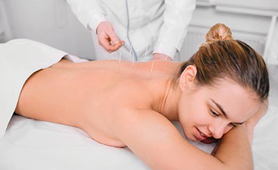 Caucasian woman having traditional chinese acupuncture treatment. Female back with acupuncture needle,