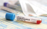 test tube with blood test is on the table next to the documents and a protective medical mask. Positive test coronavirus covid-19. The concept of fighting a dangerous Chinese disease. COVID-2019